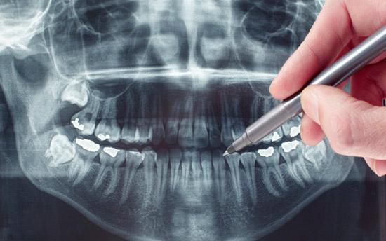 ortopantomografia panoramica