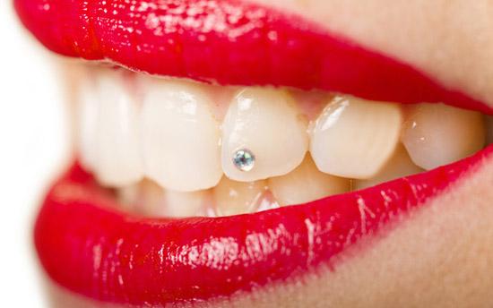 Brillantino denti